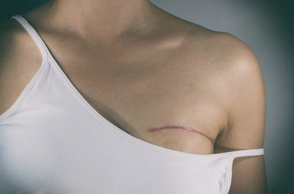 Breast cancer surgery scars by partial mastectomy. With effect filter.