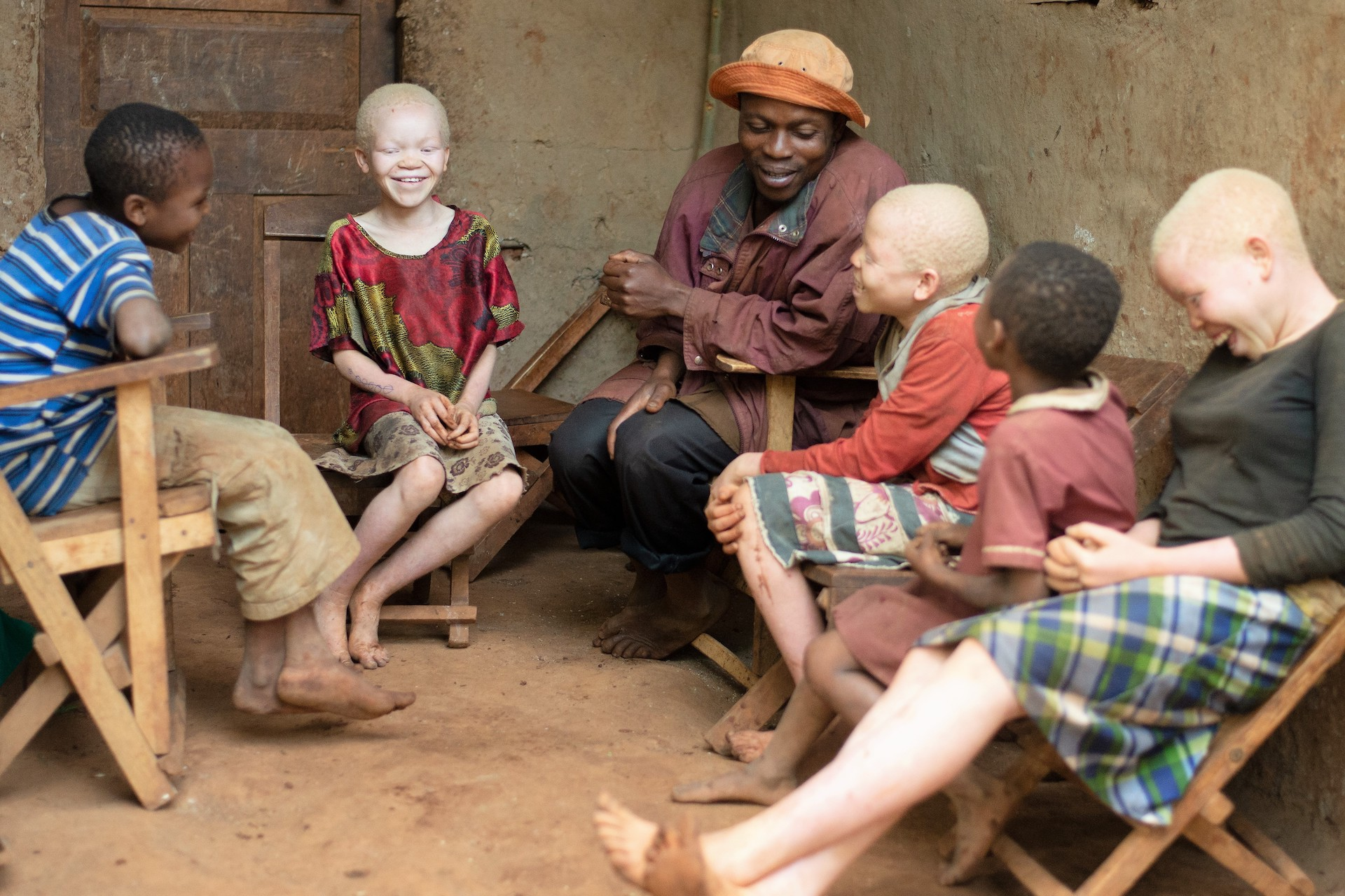 A father sits with his five children. Three of them have albinism.