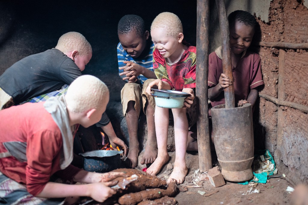 Five siblings, three of whom have albinism, sit together outside their home.