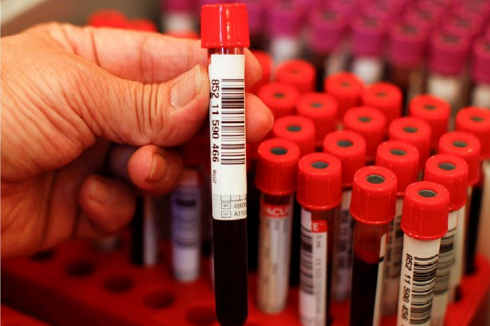 Protecting Against Blood and Other Potentially Infectious Materials - Healthcare