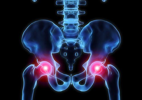 schematic of hip pain