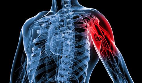 schematic of shoulder pain
