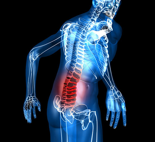 schematic of low back pain