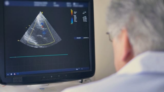 Docs on Call: Breast Cancer Screening