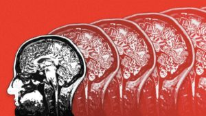 Is targeting brain inflammation the key to beating Alzheimer's disease?