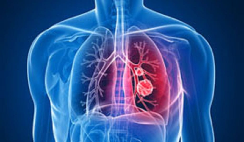 4 Your Health: Inflammation in the lungs after vaping