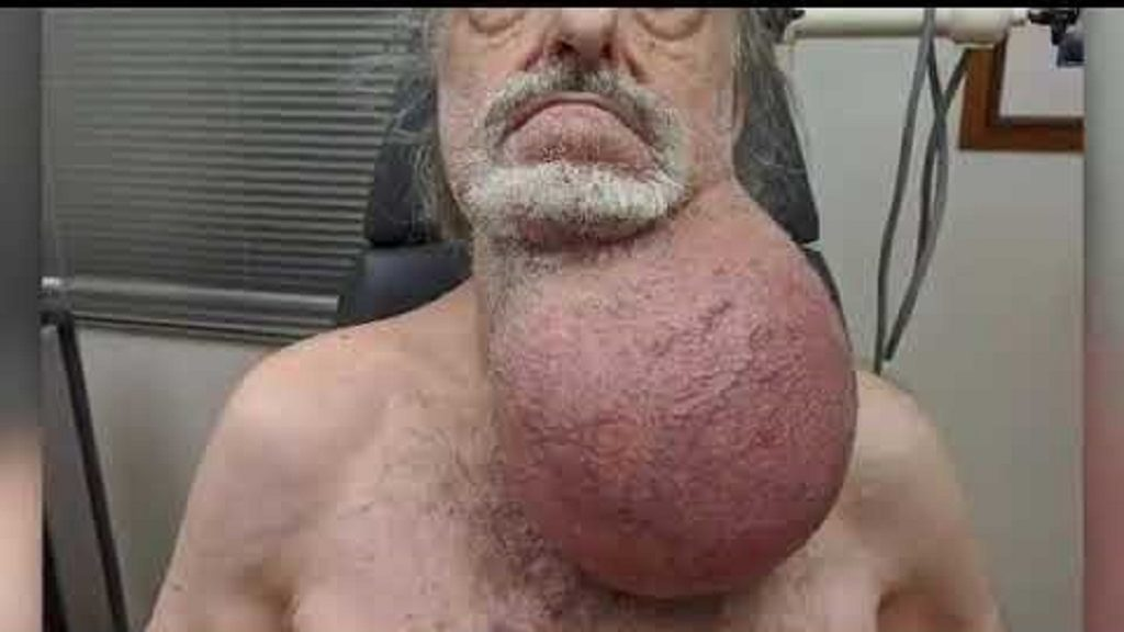 Tumor the size of soccer ball removed from man's neck