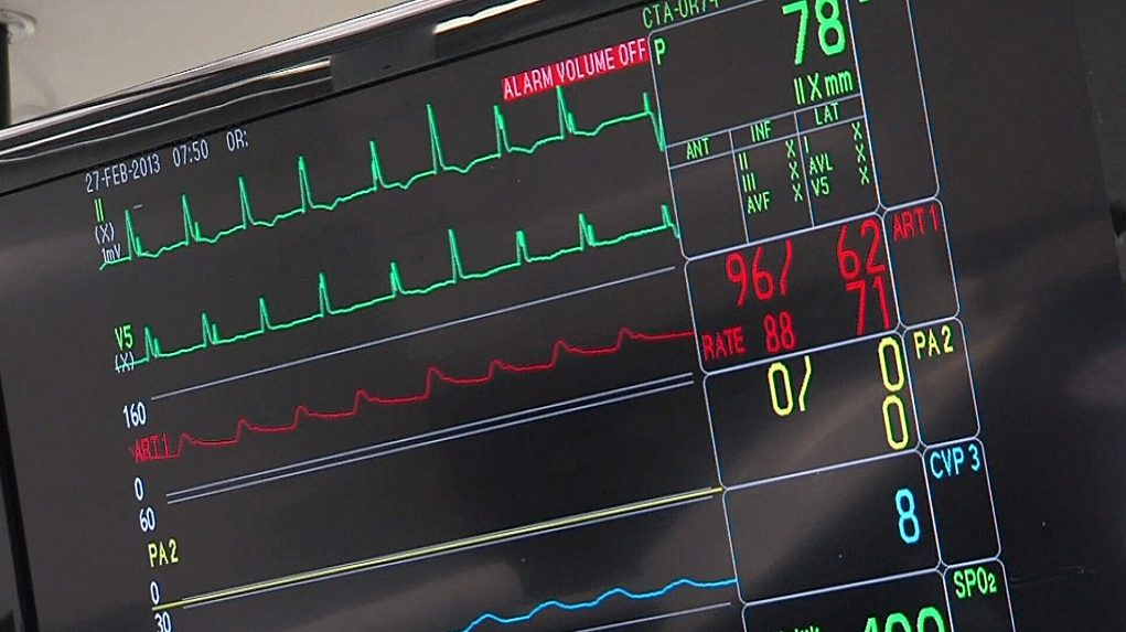 4 Your Health: Concussion recovery could take up to one year